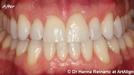 Lingual braces | Incognito braces